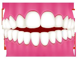 開咬(前歯が閉じない)