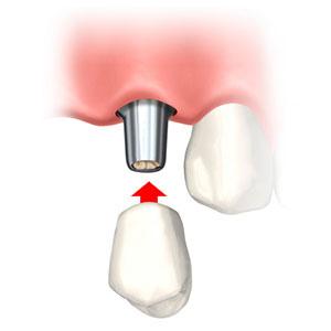 フラップレスインプラント治療3